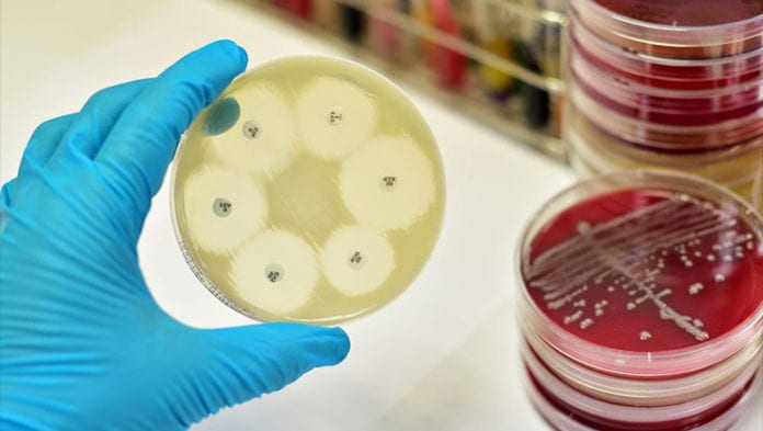Galway Daily news Study finds Public sanitation linked to antibiotic resistance